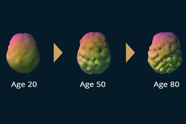 غذای مفید برای جلوگیری از پیری مغز