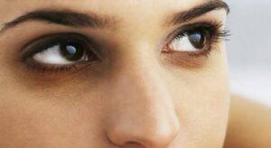 پوست دور چشم