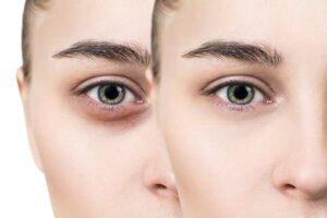 سلامت پوست چشم
